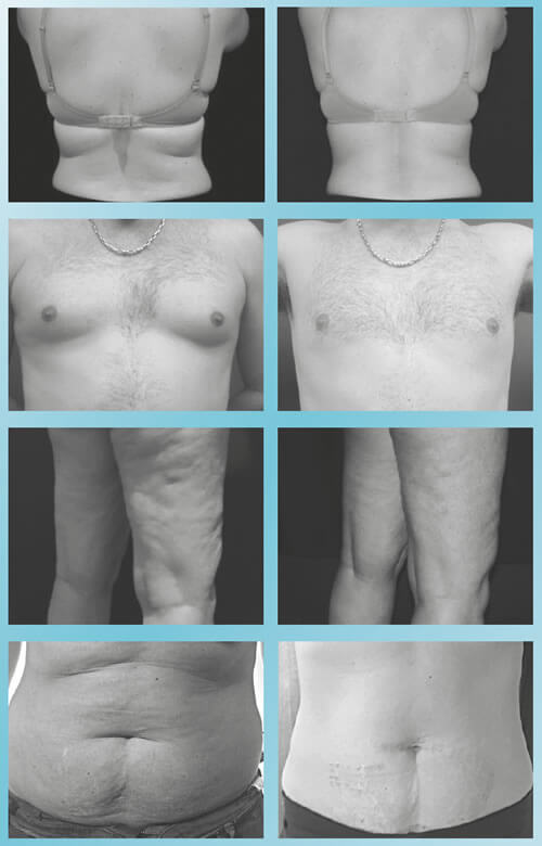 Before And After Photos For Ice Lipo Treatments Provided By Silk Finish Beauty Salon In Blenheim