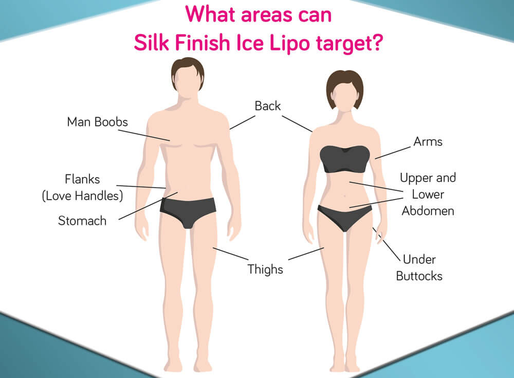 Treatable Areas In Men And Women For Ice Lipo Treatments Provided By Silk Finish Beauty Salon In Marlborough